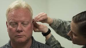 Acupuntura na Doença de Alzheimer